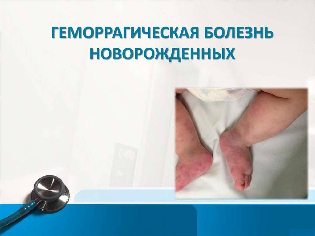 Геморрагическая болезнь новорожденных - проболезни