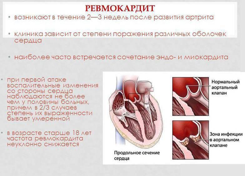 Миокардит симптомы и лечение у детей