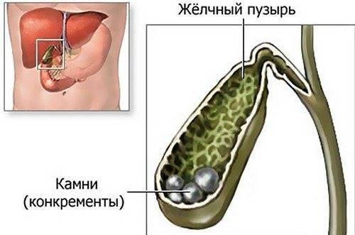 Желчегонные средства при загибе желчного пузыря