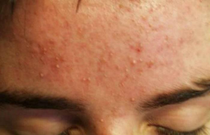 Сыпь на лице у ребенка: все виды прыщиков с пояснениями и фото на щеках, носу, лбу