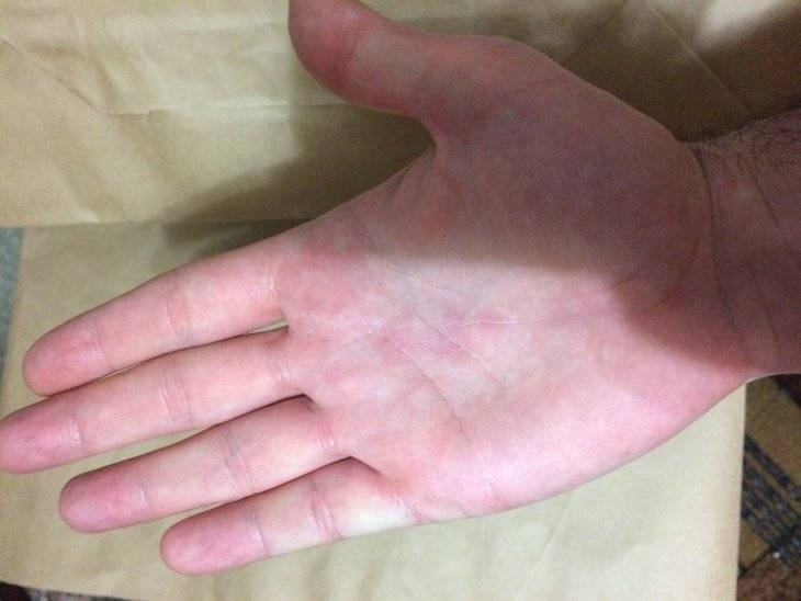 Сыпь на ступнях ног красная или мелкая чешется что это