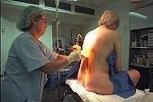Болит спина после эпидуральной анестезии – что делать?