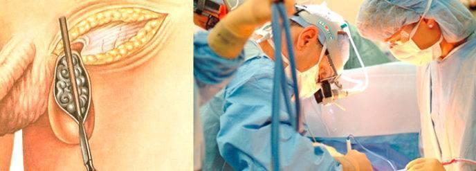 Как делают операцию варикоцеле у подростков