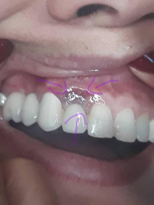 Что делать если откололся молочный зуб у ребенка