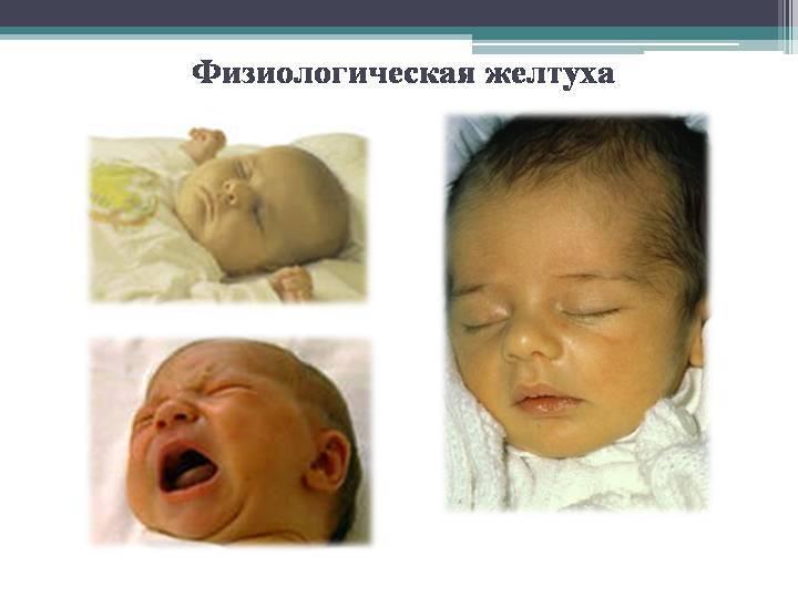 Патологическая желтуха у новорожденных: симптомы и последствия