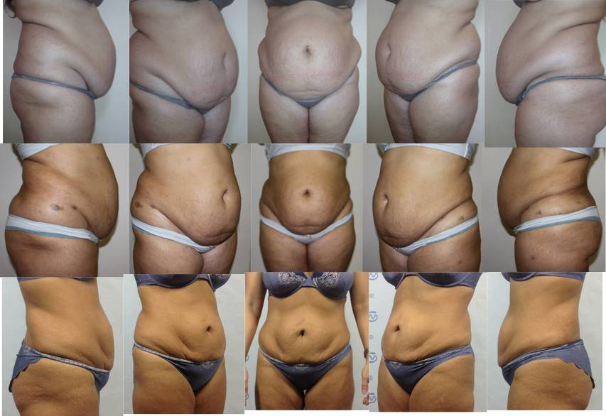 Почему вес стоит на месте при похудении: что делать?