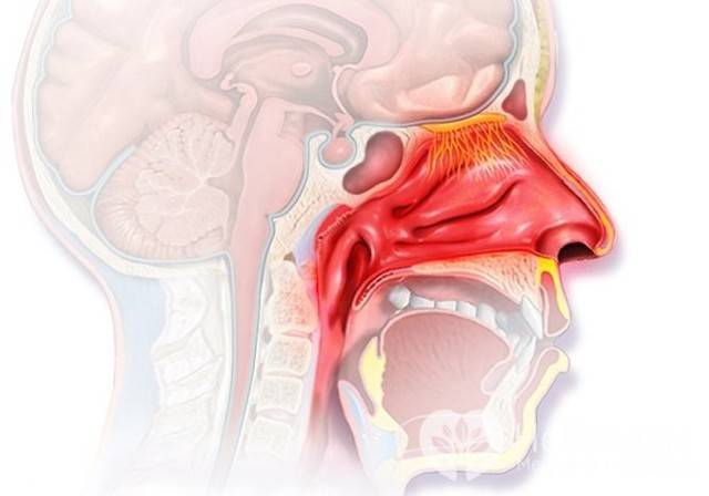 Отек носоглотки: симптомы и лечение, как и чем снять у взрослого и ребенка