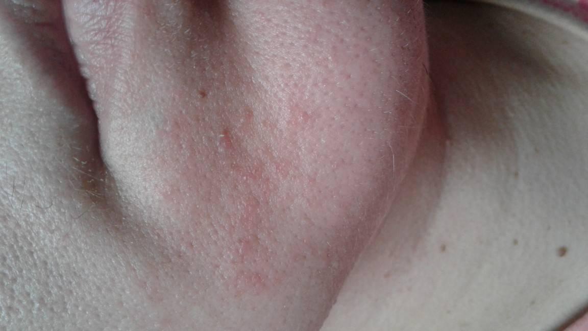 Проблемы с кожей у детей школьного возраста. что делать с угрями и прыщами? - детское здоровье и уход