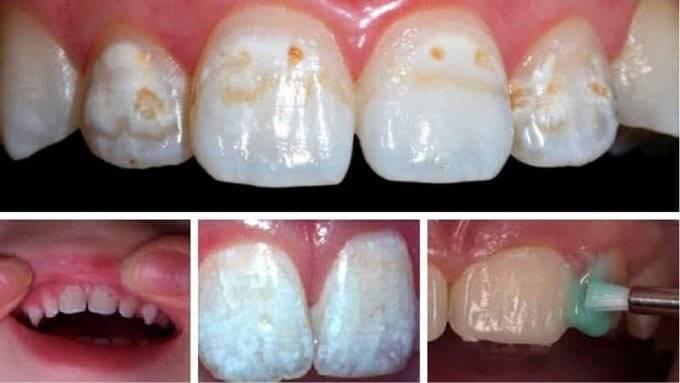 Фторирование зубов детям | рекомендации и противопоказания - центр стоматологии «тихонова» в туле