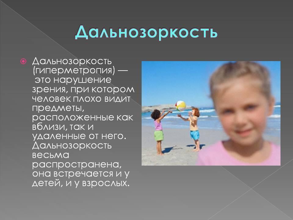 Гиперметропия (дальнозоркость) у детей: причины, классификации, симптомы, диагностика, лечение и профилактика