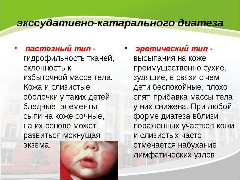Лечение диатеза у грудничков аптечными и народными средствами