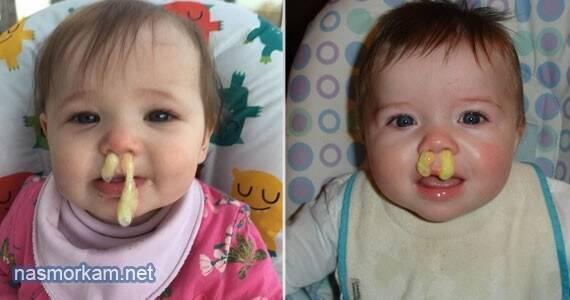 Ребенок произносит звуки в нос. лечение и причины того, что ребенок говорит в нос