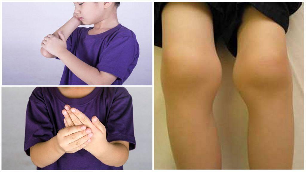 Транзиторный артрит тазобедренного сустава у детей - диагностика и лечение, рецепты народной медицины, таблетки, что это такое
