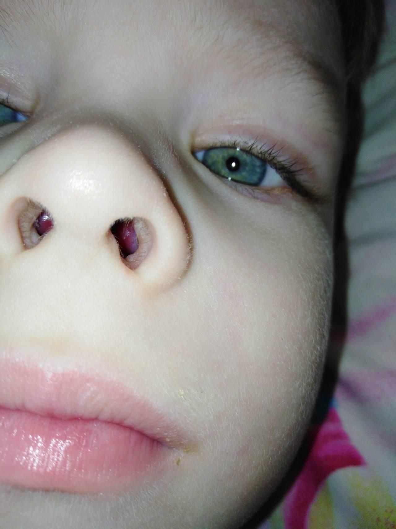 Полипы в носу. причины, симптомы и признаки, диагностика и лечение. удаление полипов в носу: операция, удаление лазером, шейвером, эндоскопическое удаление. народные средства. :: polismed.com