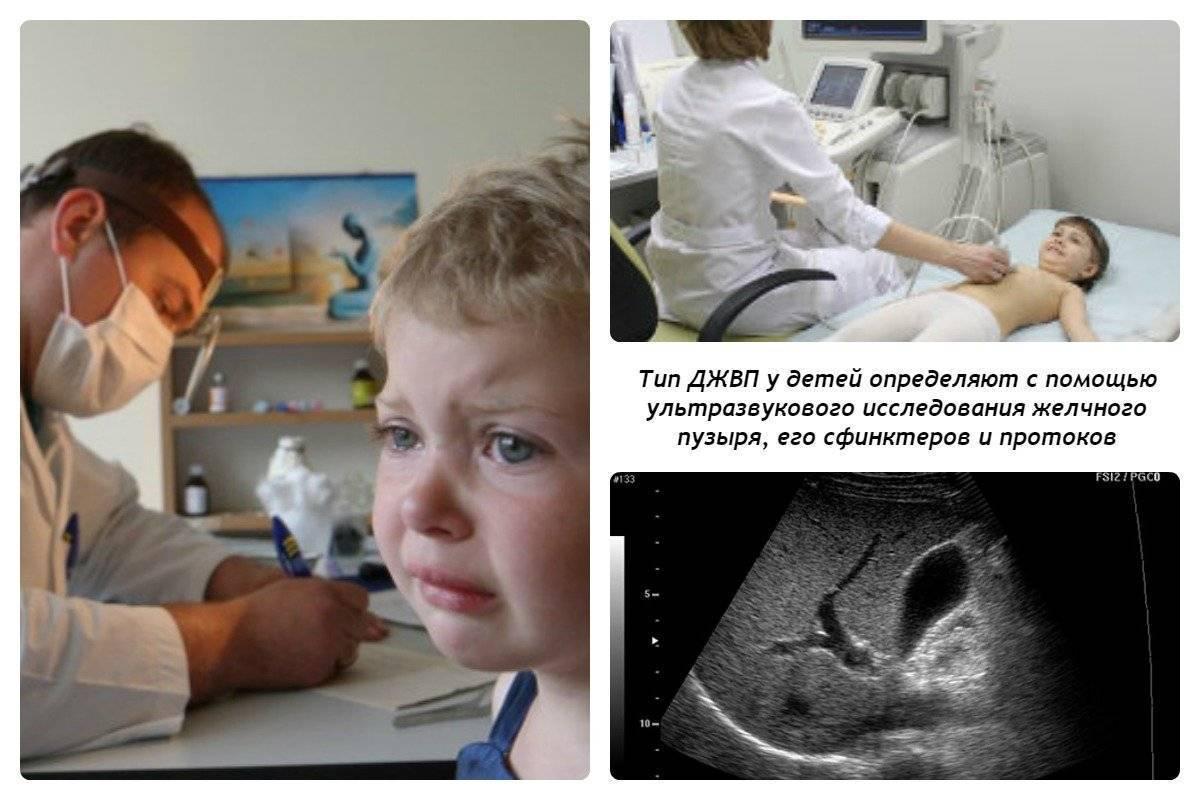 Дискинезия желчевыводящих путей у детей (джвп): причины, симптомы, лечение, признаки