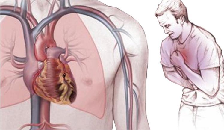 Болит сердце у подростка: причины, симптомы лечение | всердце.ком