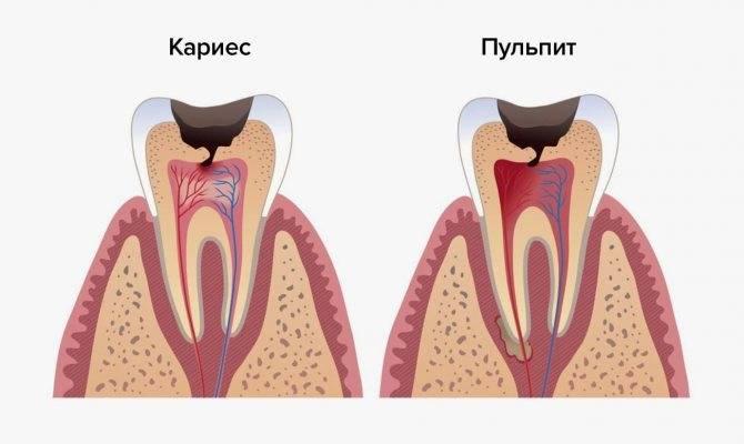 Пульпит молочных зубов у детей: лечение и фото