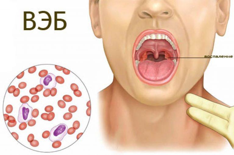 Белые прыщи в горле - у ребенка, взрослого, что это, на задней стенке, ближе к горлу на язычке, миндалине