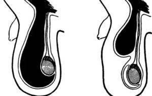 Водянка яичек у новорожденных мальчиков: фото, причины гидроцеле у грудничка, лечение