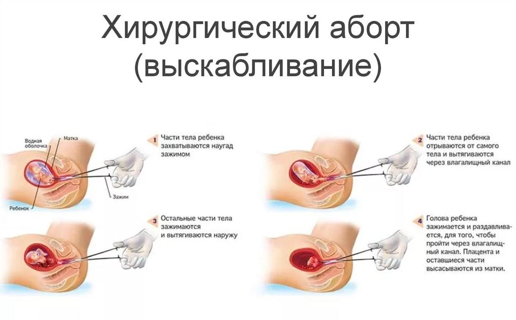 Больно ли делать чистку после выкидыша - molnar.ru