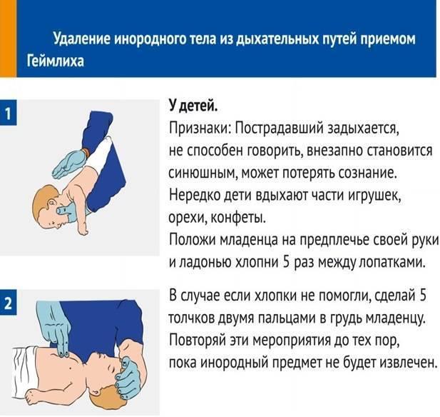 Что делать, если грудничок подавился: это должна знать каждая мама! если ребенок подавился: самое главное — не паникуйте!