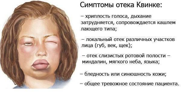 Отк квинке симптомы и лечение в домашних