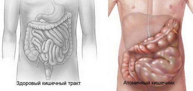 Дискинезия кишечника и методы борьбы с ней