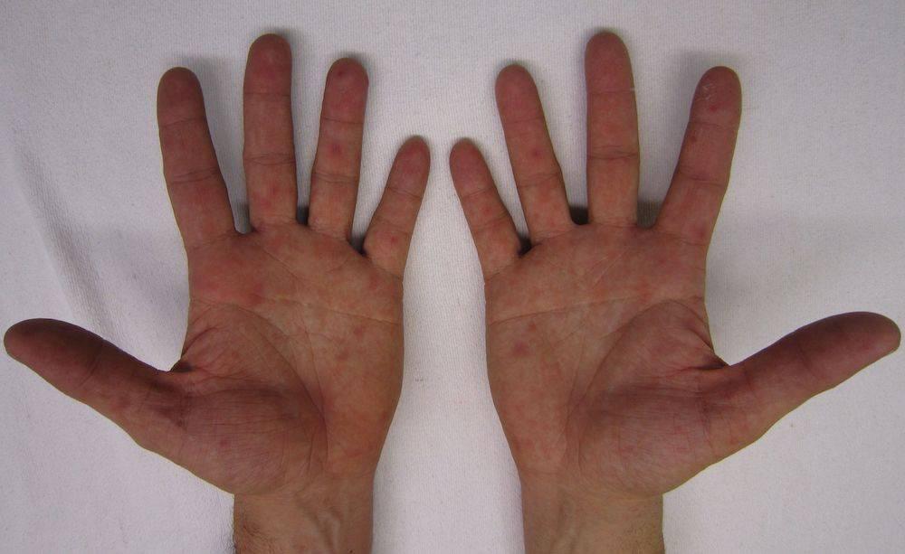 Инфекция рука нога рот у детей