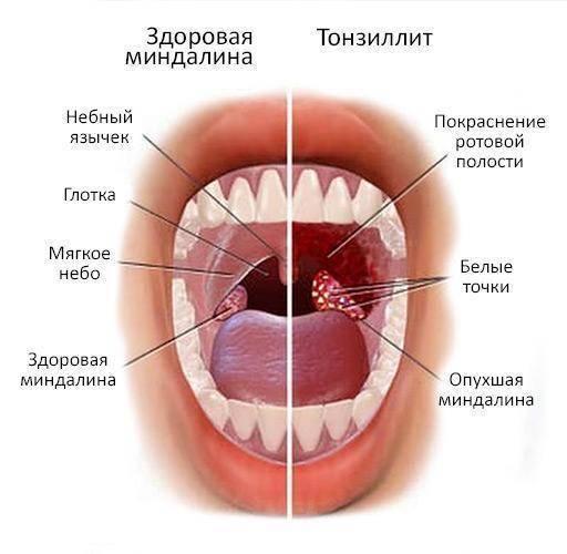 Красное горло у ребенка (рыхлое): чем лечить и какие причины проявления?