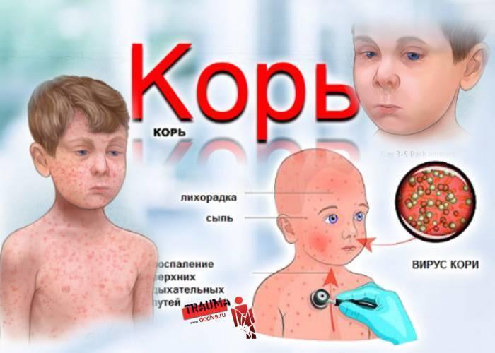 Корь - симптомы у детей, фото, лечение и профилактика, препараты | здрав-лаб