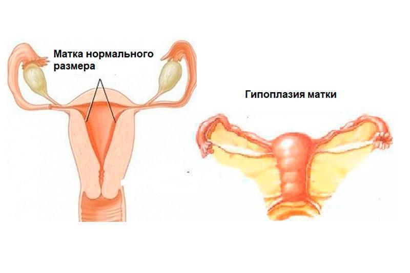 Седловидная матка и беременность: 14 отзывов и историй, удивительные факты