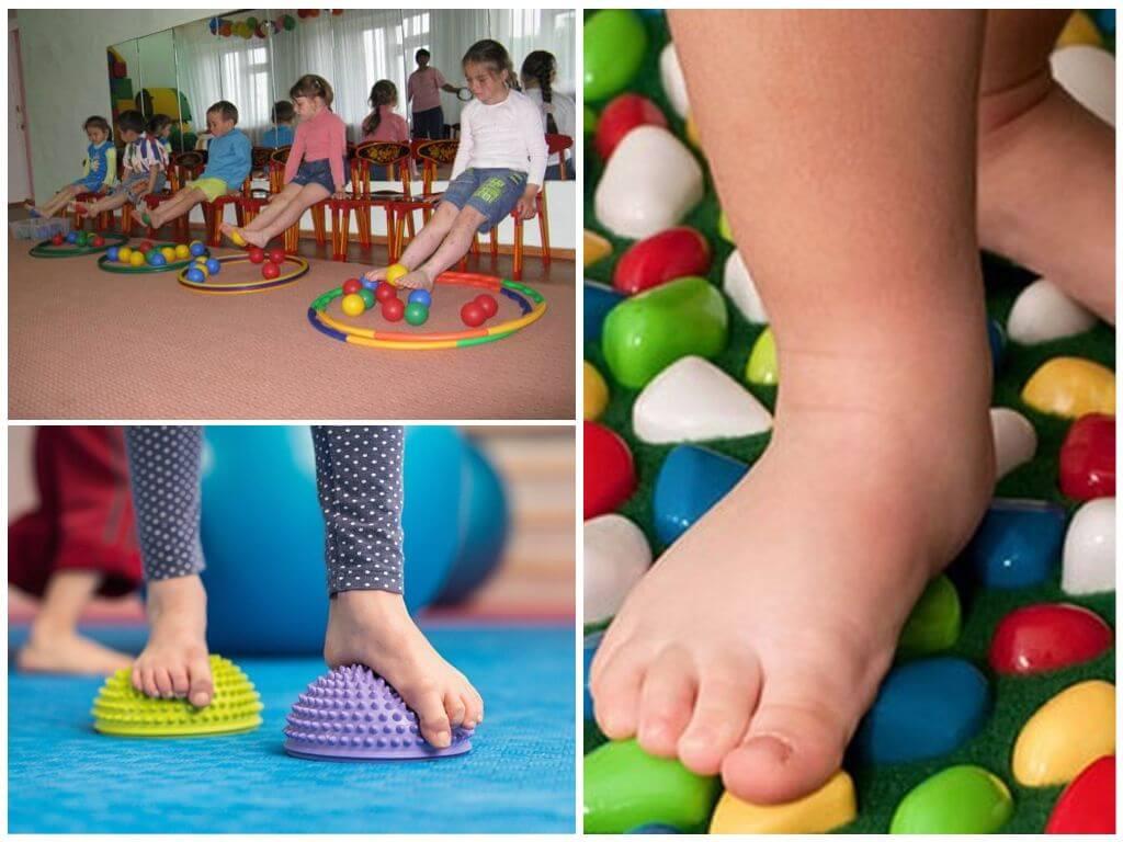 Плоскостопие у детей. причины, симптомы, лечение и профилактика плоскостопия