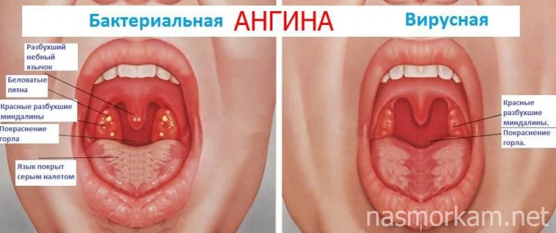 Грибковая ангина у детей и взрослых: симптомы и лечение + фото