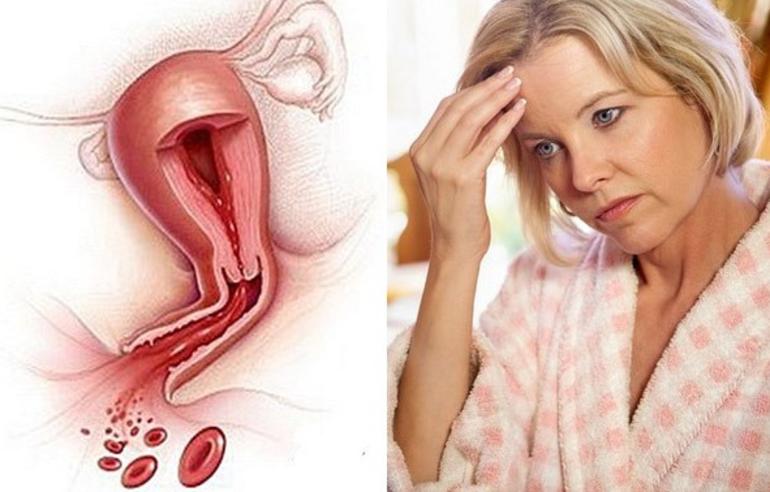 Как уменьшить менструацию – простые способы решения сложных проблем