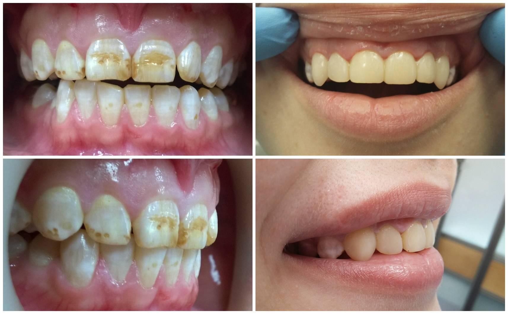 Фторирование зубов у детей, показания и особенности проведения процедуры