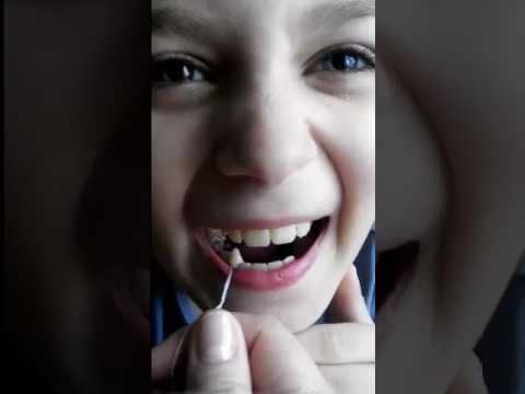 Как вырвать молочный зуб: подготовка и способы проведения