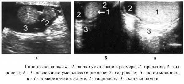 Симптомы гипоплазии яичек у мальчиков, причины дисфункции и схема лечения