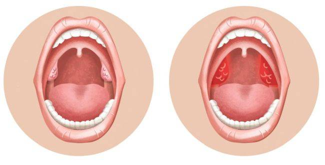 Грибковый тонзиллит (ангина): каковы симптомы, как правильно лечить детей и взрослых