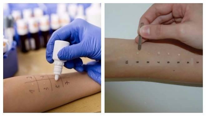 Аллергопробы для детей и взрослых: виды, как делают, расшифровка