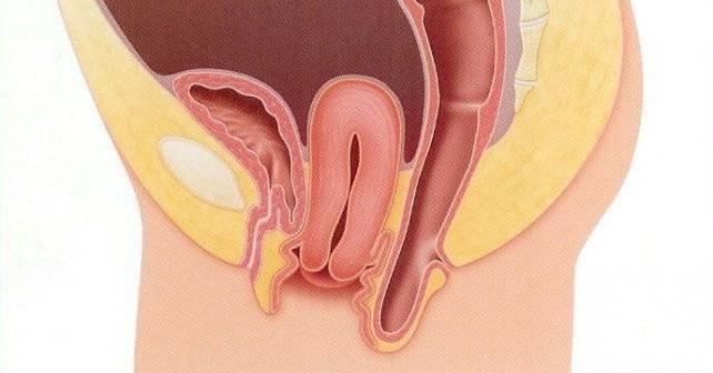 Опущение стенок влагалища и матки после родов: как лечить