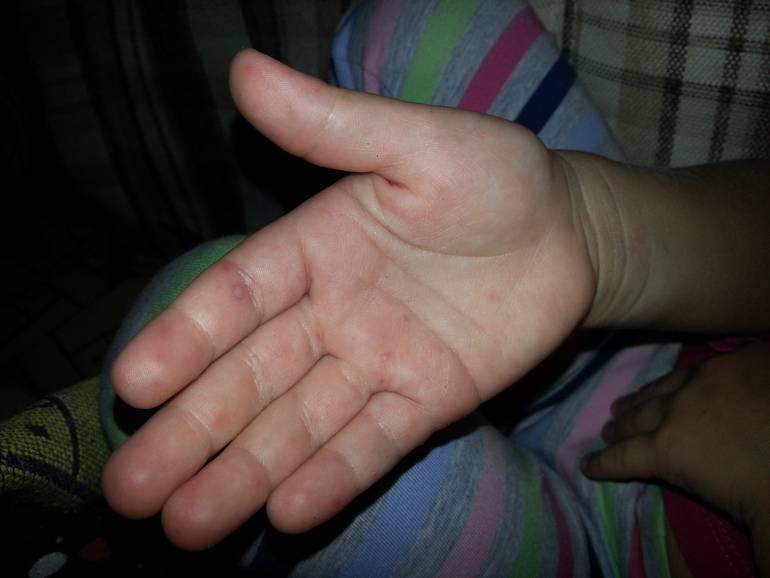 Красная сыпь на ладошках у ребенка • аллергия и аллергические реакции