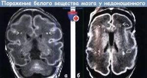 Кисты головного мозга у новорожденного ребёнка.