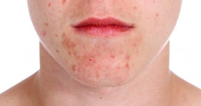 Сыпь на лице вокруг носа и рта у взрослого