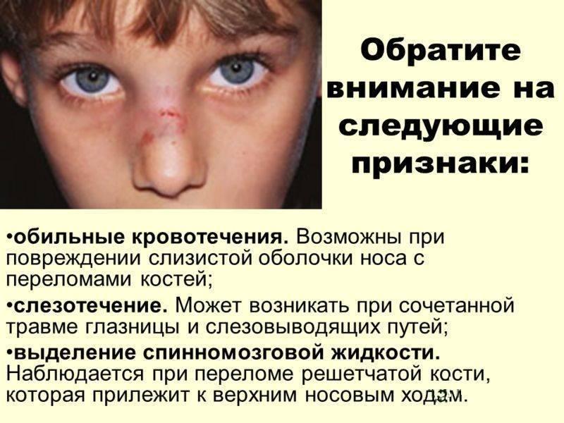 Перелом носа у ребенка: признаки, симптомы, как понять, определить и распознать перелом