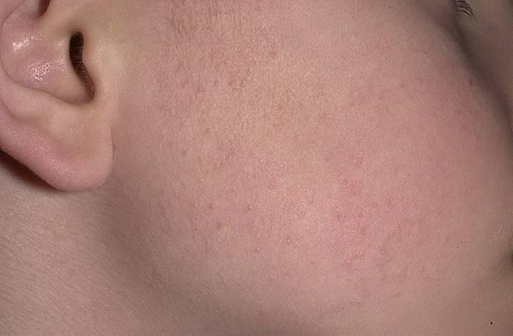 Сыпь на коже у ребенка как гусиная кожа