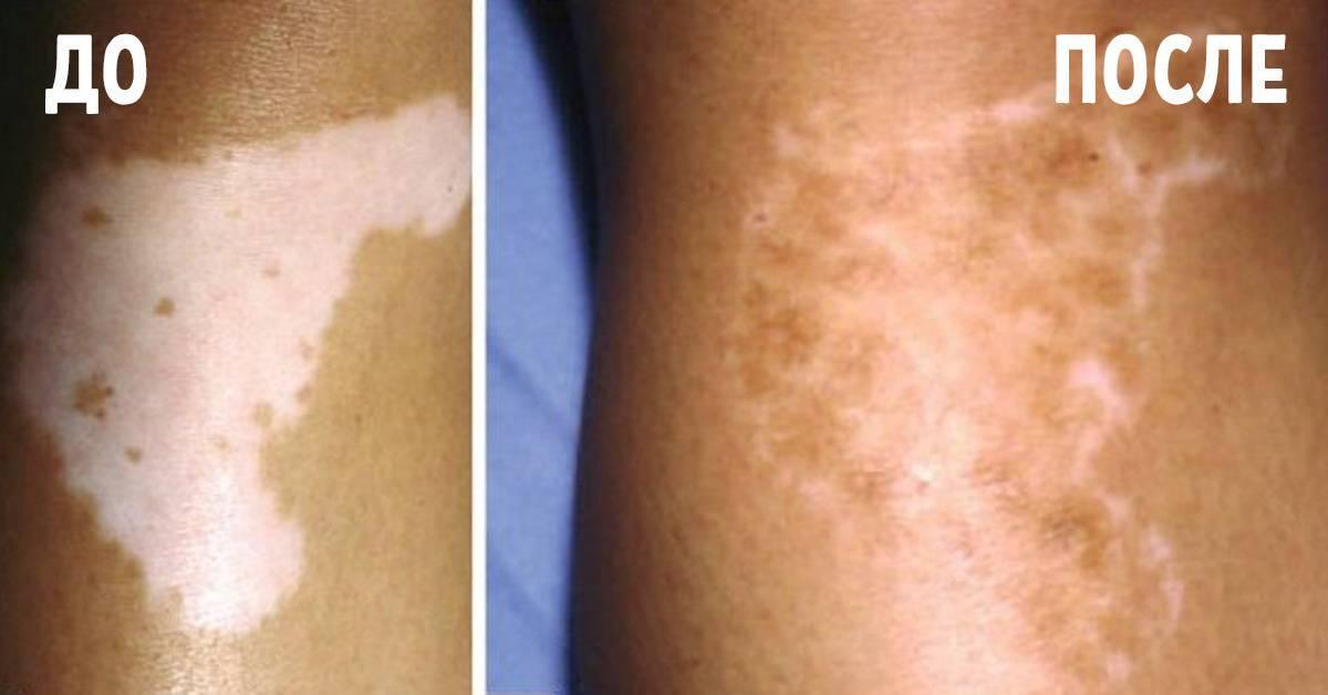 Витилиго: фото начальной стадии, причины и лечение