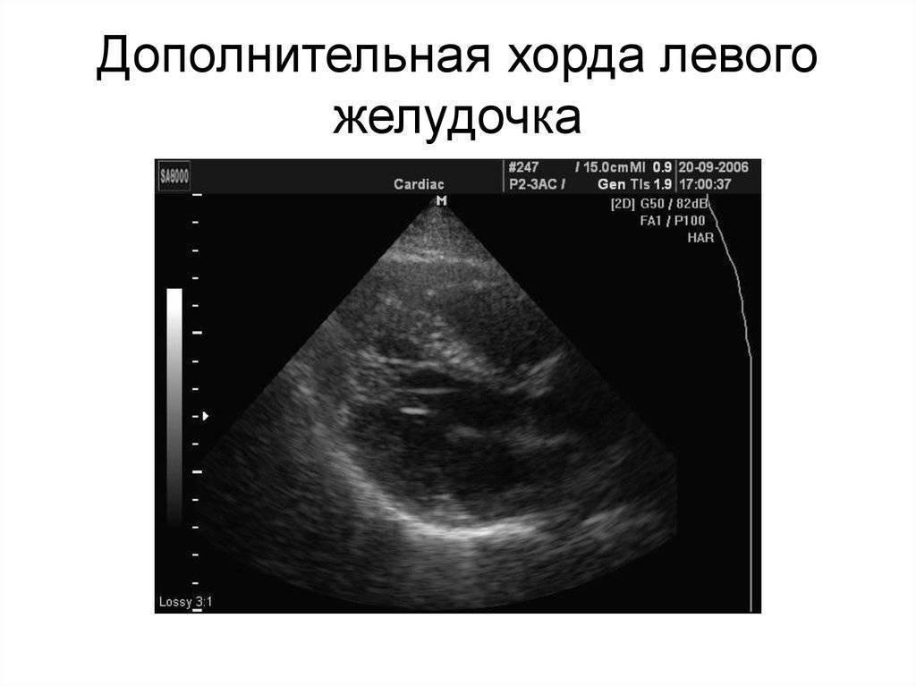 Ложная хорда левого желудочка у ребенка