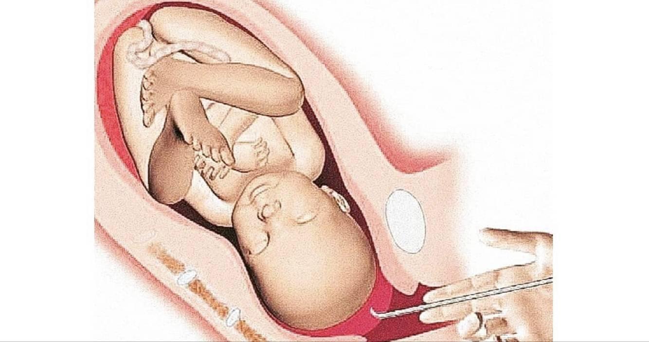 Прокол пузыря перед родами: показания и противопоказания, техника проведения, ощущения