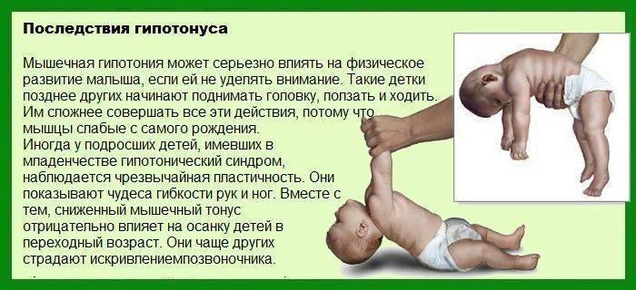Гипотонус у грудничка (комаровский): признаки, массаж, лечение ребенка
