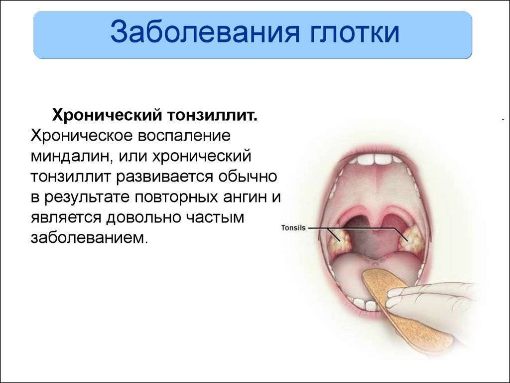 Симптомы болезни горла и гортани, фото воспаления у взрослых
